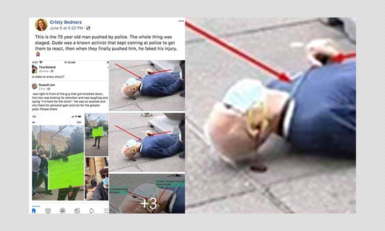 Activist Martin Gugino Did Not Fake Injury At George Floyd Protest