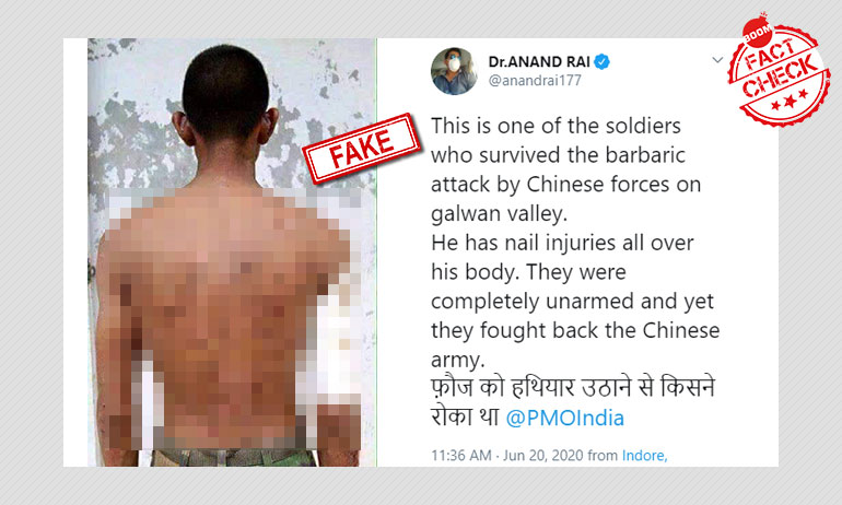 No, Photo Does Not Show Indian Soldier Injured In India-China Clash