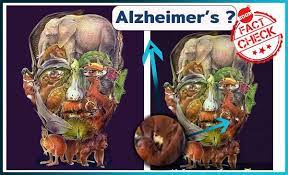 Not Finding a camel in the image sparks rumours of risks of Alzheimer's